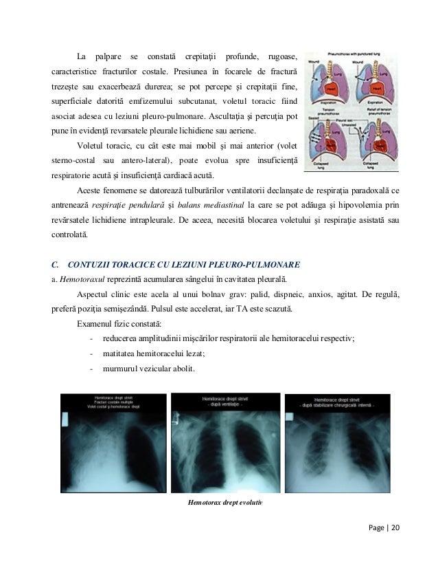 Page | 20 La palpare se constată crepitaţii profunde, rugoase, caracteristice fracturilor costale. Presiunea în focarele d...