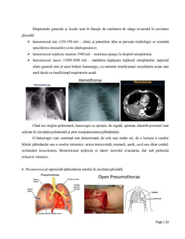 Page | 22 Simptomele generale şi locale sunt în funcţie de cantitatea de sânge revarsată în cavitatea pleurală:  hemotora...