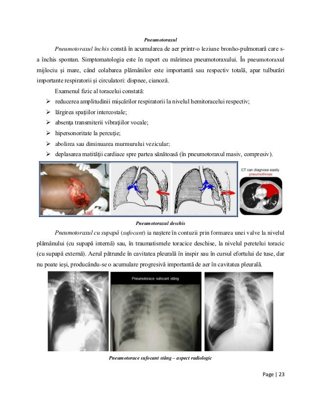 Page | 23 Pneumotoraxul Pneumotoraxul închis constă în acumularea de aer printr-o leziune bronho-pulmonară care s- a închi...