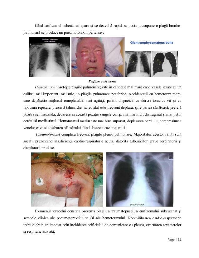 Page | 31 Când emfizemul subcutanat apare şi se dezvoltă rapid, se poate presupune o plagă bronho- pulmonară ce produce un...