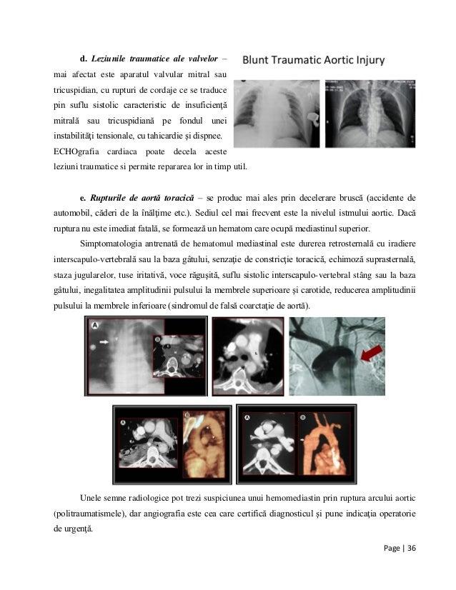 Page | 36 d. Leziunile traumatice ale valvelor – mai afectat este aparatul valvular mitral sau tricuspidian, cu rupturi de...