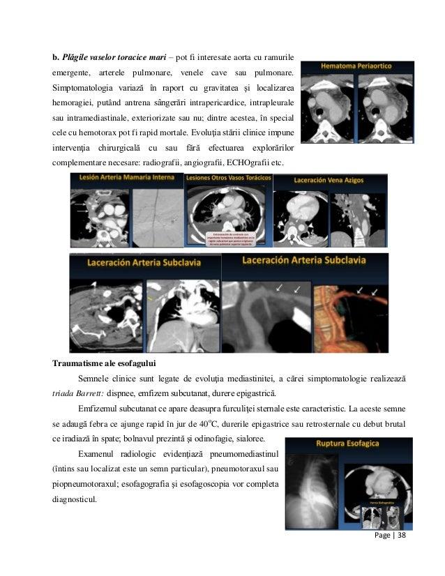 Page | 38 b. Plăgile vaselor toracice mari – pot fi interesate aorta cu ramurile emergente, arterele pulmonare, venele cav...