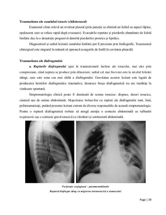 Page | 39 Traumatisme ale canalului toracic (chilotoraxul) Examenul clinic relevă un revărsat pleural (prin puncţie se eli...