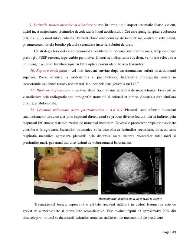 Page | 49 9. Leziunile traheo-bronsice si alveolare survin in urma unui impact traumatic foarte violent, astfel incat majo...
