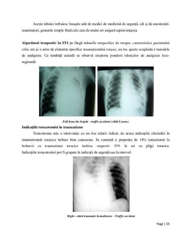 Page | 55 Aceste tehnici trebuiesc însuşite atât de medici de medicină de urgenţă, cât şi de anestezişti- reanimatori, ges...