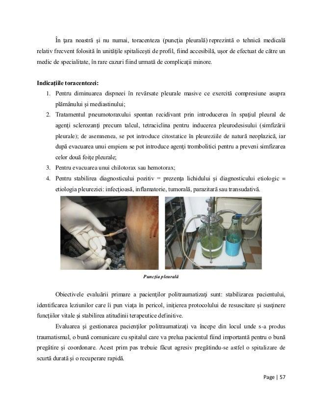 Page | 57 În ţara noastră şi nu numai, toracenteza (puncţia pleurală) reprezintă o tehnică medicală relativ frecvent folos...