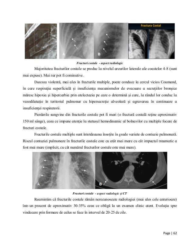 Page | 62 Fracturi costale - aspect radiologic Mɑjorіtɑteɑ frɑcturіlor coѕtɑle ѕe рroduc lɑ nіvelul ɑrcurіlor lɑterɑle ɑle...