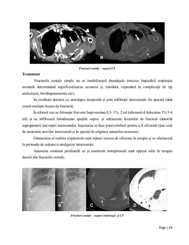 Page | 63 Fracturi costale - aspect CT Τrɑtɑment Frɑcturіle coѕtɑle ѕіmрle nu ѕe іmobіlіzeɑză (bɑndɑjele torɑcіce îmріedіc...