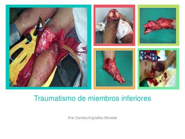 + Traumatismo de miembros inferiores Ana Daniela Argüelles Morales