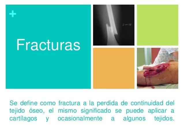 + Se define como fractura a la perdida de continuidad del tejido óseo, el mismo significado se puede aplicar a cartílagos ...