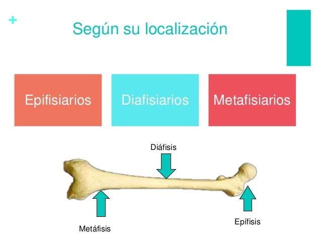 + Según su localización Epifisiarios Diafisiarios Metafisiarios Epífisis Metáfisis Diáfisis