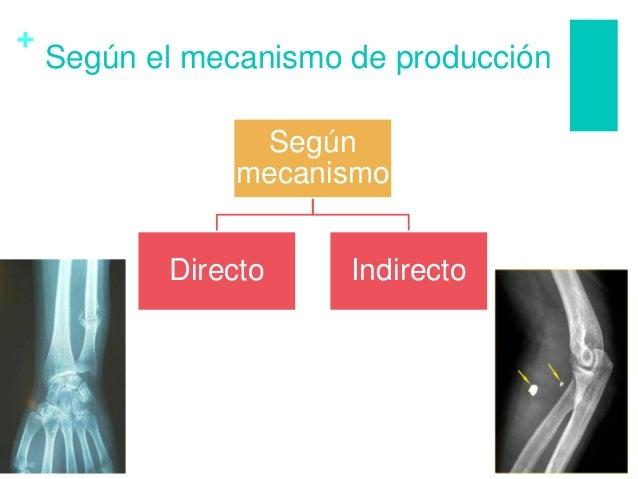 + Según el mecanismo de producción Según mecanismo Directo Indirecto