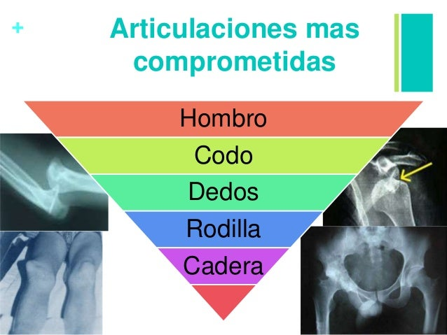 + Articulaciones mas comprometidas Hombro Codo Dedos Rodilla Cadera