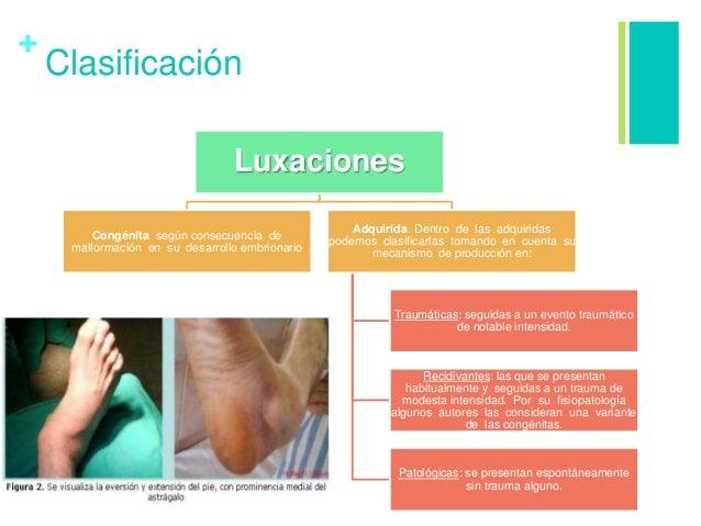 + Clasificación Luxaciones Congénita según consecuencia de malformación en su desarrollo embrionario Adquirida. Dentro de ...
