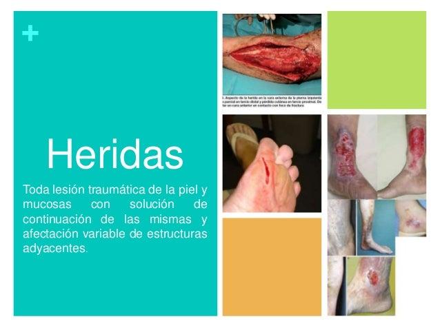 + Heridas Toda lesión traumática de la piel y mucosas con solución de continuación de las mismas y afectación variable de ...