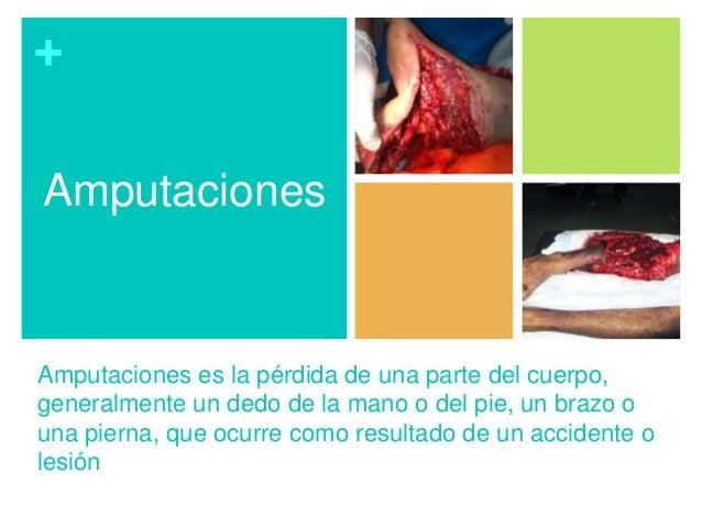 + Amputaciones es la pérdida de una parte del cuerpo, generalmente un dedo de la mano o del pie, un brazo o una pierna, qu...