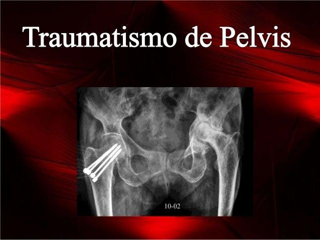 AnatomíaEl anillo pelvianoestá compuesto por:-Hueso Iliaco (Pubis, Isquion e Ilion)- Sacrocoxis