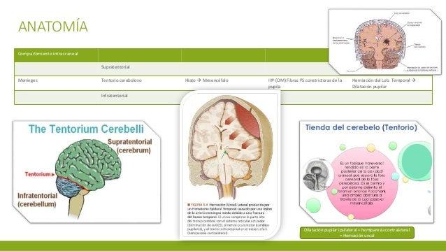 ANATOMÍA Compartimiento intracraneal Supratentorial Meninges Tentorio cereboloso Hiato  Mesencéfalo IIIº (OM) Fibras PS c...