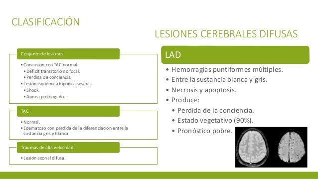 CLASIFICACIÓN LESIONES CEREBRALES DIFUSAS •Concusión con TAC normal: •Déficit transitorio no focal. •Perdida de conciencia...