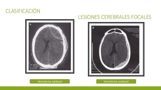 CLASIFICACIÓN LESIONES CEREBRALES FOCALES Hematoma epidural Hematoma subdural