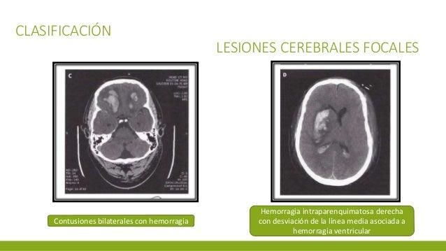 CLASIFICACIÓN LESIONES CEREBRALES FOCALES Contusiones bilaterales con hemorragia Hemorragia intraparenquimatosa derecha co...