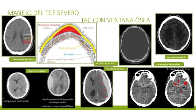 MANEJO DEL TCE SEVERO TAC CON VENTANA ÓSEA ↑ Hematoma subgaleal → Fractura de cráneo → Hematoma epidural ↑ Hematoma epidur...