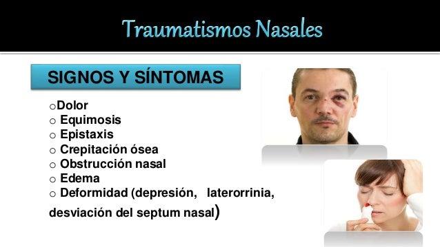 Traumatismo Nasal. Epistaxis