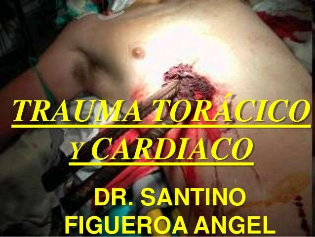 TRAUMA TORÁCICO Y CARDIACO DR. SANTINO FIGUEROA ANGEL