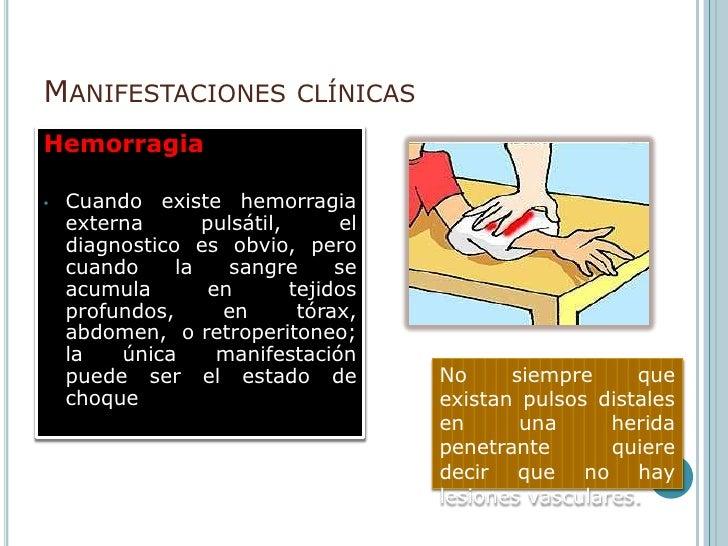 Manifestaciones clínicas <br />El trauma vascular se puede manifestar de diversas maneras  a través :<br />isquemia<br />F...