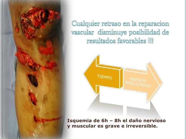 Manifestaciones clínicas <br /><ul><li>Isquémicas</li></ul>La isquemia prolongada causa necrosis muscular y  rabdomiolisis...