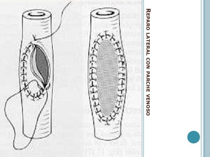 TRATAMIENTO DEL TRAUMATISMO VASCULAR<br />Inicial:<br />Lesiones impliquen la vida del paciente !!!<br />Definitivo:  (esp...