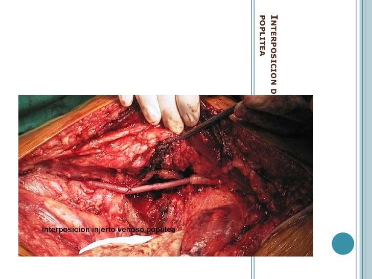 TRATAMIENTO INICIAL: <br />MANEJO:<br />Paciente con herida de torax o abdomen penetraten, sin perdertiempoCIRUGIA<br />A....