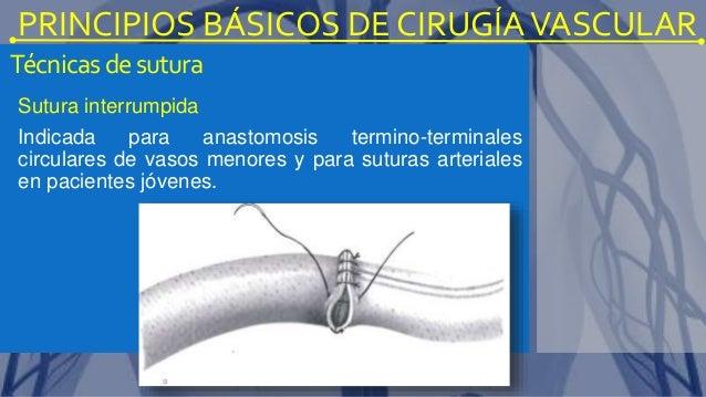 La várice varicosa la insuficiencia venosa el tratamiento
