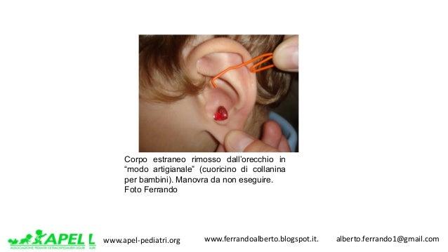 www.apel-pediatri.org www.ferrandoalberto.blogspot.it.alberto.ferrando1@gmail.com Corpo estraneo rimosso dall'ore...