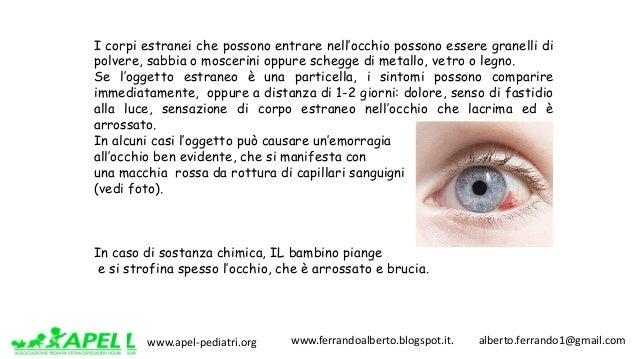 www.apel-pediatri.org www.ferrandoalberto.blogspot.it.alberto.ferrando1@gmail.com I corpi estranei che possono en...
