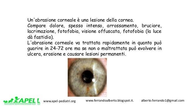 www.apel-pediatri.org www.ferrandoalberto.blogspot.it.alberto.ferrando1@gmail.com Un'abrasione corneale è una les...