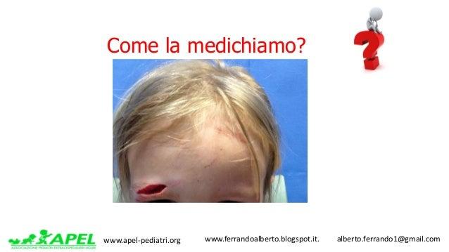 www.apel-pediatri.org www.ferrandoalberto.blogspot.it.alberto.ferrando1@gmail.com Come la medichiamo?