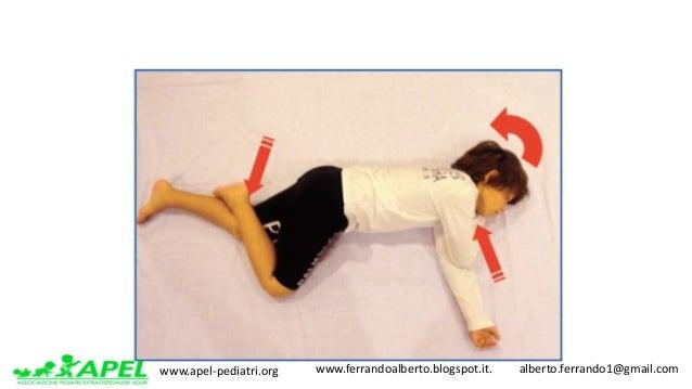 www.apel-pediatri.org www.ferrandoalberto.blogspot.it.alberto.ferrando1@gmail.com Posizione laterale di sicurezza