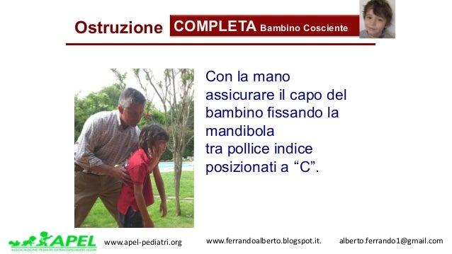 www.apel-pediatri.org www.ferrandoalberto.blogspot.it.alberto.ferrando1@gmail.com Ostruzione COMPLETA Bambino Cos...