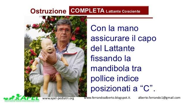 www.apel-pediatri.org www.ferrandoalberto.blogspot.it.alberto.ferrando1@gmail.com Ostruzione COMPLETA Lattante Co...