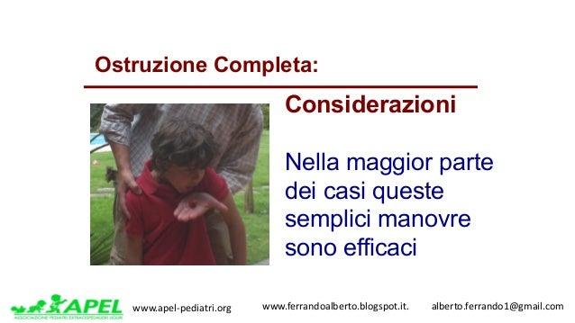 www.apel-pediatri.org www.ferrandoalberto.blogspot.it.alberto.ferrando1@gmail.com Ostruzione Completa: Consideraz...