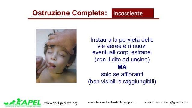 www.apel-pediatri.org www.ferrandoalberto.blogspot.it.alberto.ferrando1@gmail.com Instaura la pervietà delle vie ...