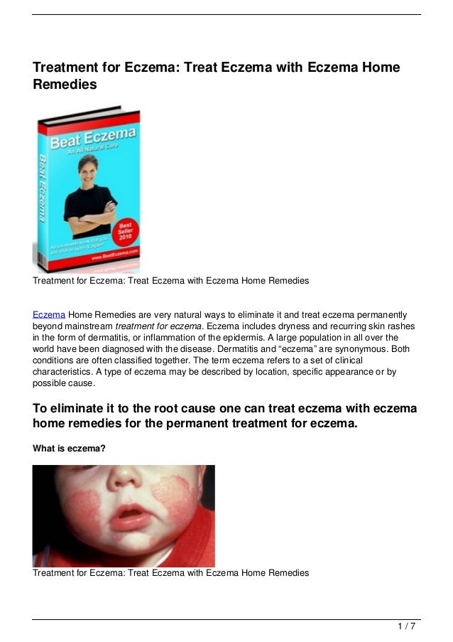Treatment for Eczema: Treat Eczema with Eczema HomeRemediesTreatment for Eczema: Treat Eczema with Eczema Home RemediesEcz...