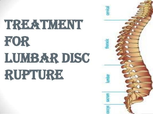 treatment for lumbar disc rupture, Human Body