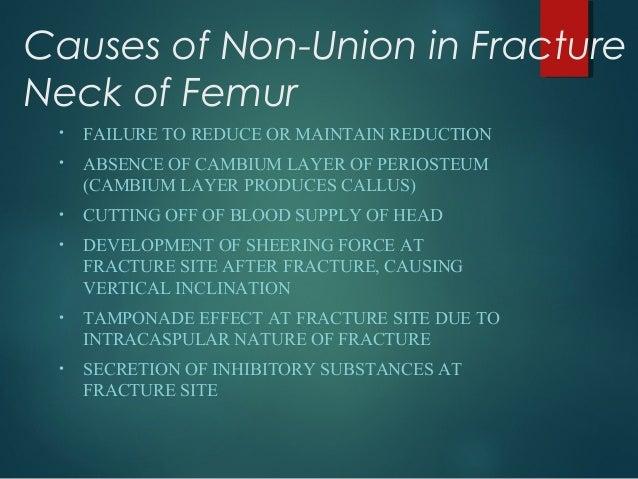 Treatment modality of non union fracture neck of femur Slide 2