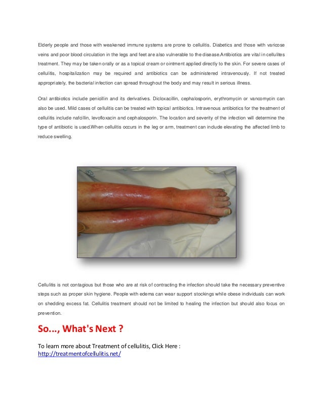 Treatment of cellulitis