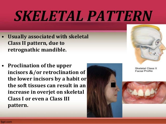 approaches to correction of class iii skeletal malocclusion This case report highlights the treatment of a mild skeletal class iii malocclusion with an invisible thermoplastic retainer a 15-year-old female patient presented with a mild skeletal class iii malocclusion with a retrognathic maxilla, orthognathic mandible, a low mandibular plane angle with angle .