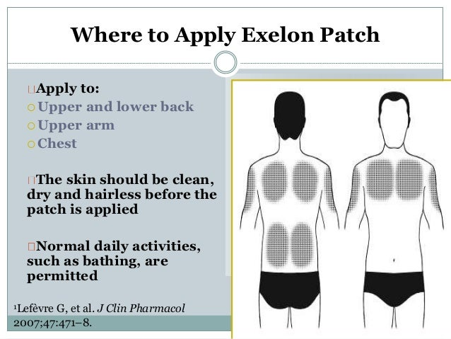 Exelon patch site rotation chart