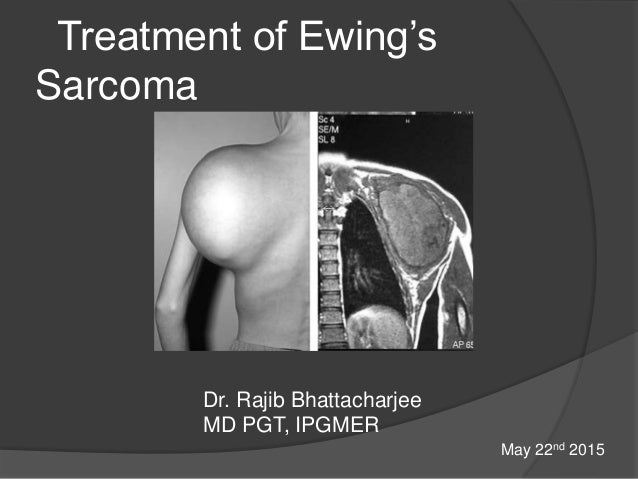Treatment of Ewing's Sarcoma Dr. Rajib Bhattacharjee MD PGT, IPGMER May 22nd 2015