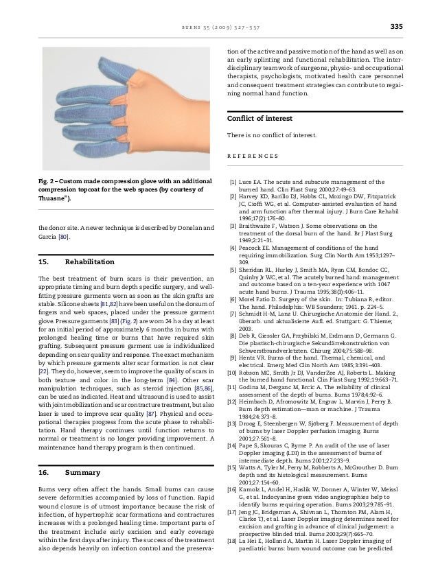 Treatment of hand burn